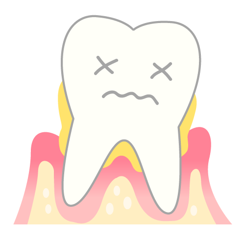 歯科治療中断による口内環境の悪化。イメージ
